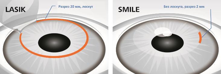Какой метод лазерной коррекции зрения лучше всего