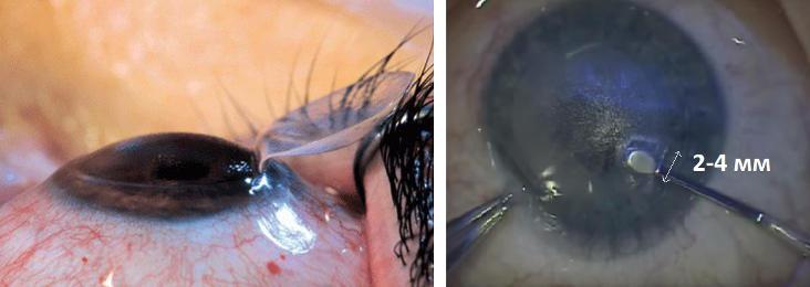 Femto-LASIK и ReLEx SMILE - срвнение и какая лазерная коррекция лучше